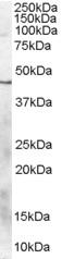 Western blot - Cannabinoid Receptor II antibody (ab77265)