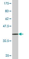 Western blot - STCH antibody (ab77301)