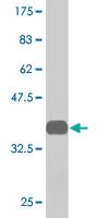 Western blot - TRIP15 antibody (ab77303)