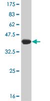 Western blot - Smg1 antibody (ab77304)