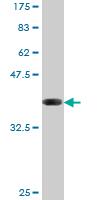 Western blot - PCYT1A antibody (ab77305)