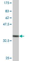 Western blot - FADS1 antibody (ab77312)