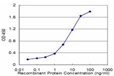 Sandwich ELISA - FADS1 antibody (ab77312)
