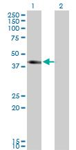 Western blot - SLC12A1 antibody (ab77320)