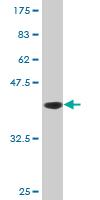 Western blot - DNAJB2 antibody (ab77322)