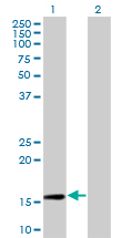 Western blot - RPL30 antibody (ab77328)