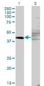 Western blot - ZNF193 antibody (ab77331)