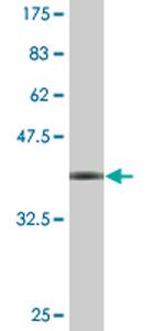 Western blot - WDR79 antibody (ab77333)