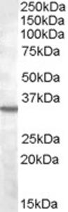 Western blot - BDKRB1 antibody (ab77366)