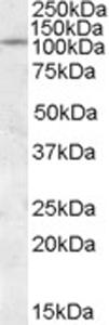 Western blot - PTPIA2 / PTPRN antibody (ab77409)
