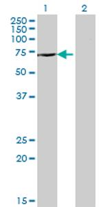 Western blot - DDX43 antibody (ab77416)