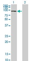 Western blot - SFMBT1 antibody (ab77419)