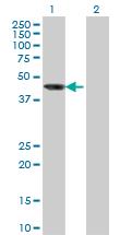 Western blot - AIPL1 antibody (ab77421)