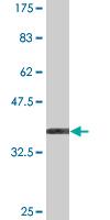 Western blot - HOOK1 antibody (ab77422)