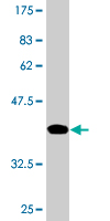 Western blot - UPF3A antibody (ab77423)