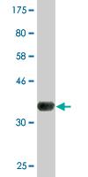 Western blot - AGTPBP1 antibody (ab77426)