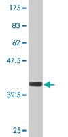 Western blot - FN3K antibody (ab77428)
