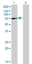 Western blot - SPAG8 antibody (ab77430)