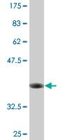 Western blot - SFXN3 antibody (ab77431)
