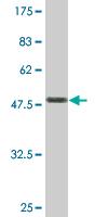 Western blot - SM22 alpha antibody (ab77442)