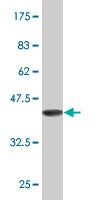 Western blot - Alx1 antibody (ab77443)