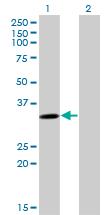 Western blot - SULT4A1 antibody (ab77445)