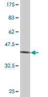 Western blot - MRPS25 antibody (ab77447)