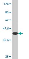 Western blot - NEK5 antibody (ab77451)