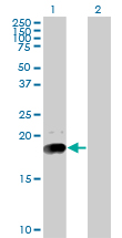 Western blot - Niemann Pick C2 antibody (ab77453)