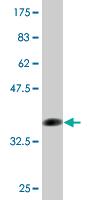 Western blot - FCN1 antibody (ab77454)