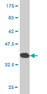 Western blot - ZNF133 antibody (ab77461)