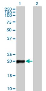 Western blot - COPS8 antibody (ab77462)