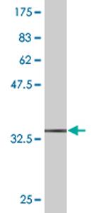 Western blot - MVK antibody (ab77463)