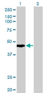 Western blot - KRT34 antibody (ab77467)