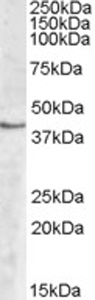Western blot - SPHK1 antibody (ab77475)