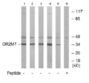 Western blot - OR2M7 antibody (ab77506)