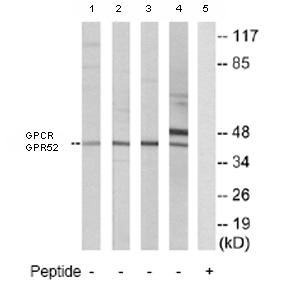 Western blot - GPCR GPR52 antibody (ab77513)