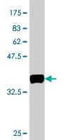 Western blot - BVES antibody (ab77639)