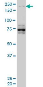 Western blot - HELZ antibody (ab77645)