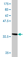 Western blot - TOM1 antibody (ab77649)