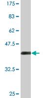 Western blot - HIPK4 antibody (ab77651)