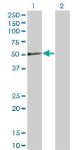 Western blot - PXK antibody (ab77652)