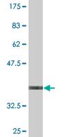 Western blot - STK40 antibody (ab77653)