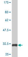 Western blot - TXNDC3 antibody (ab77658)