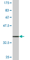 Western blot - TCEAL1 antibody (ab77661)