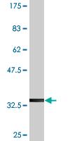 Western blot - NETO2 antibody (ab77675)