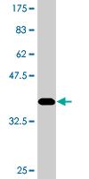 Western blot - Colec12 antibody (ab77677)