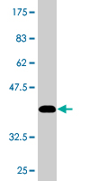 Western blot - DIAPH3  antibody (ab77678)