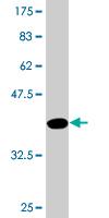 Western blot - PLEKHH3 antibody (ab77679)