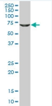 Western blot - GLYCTK antibody (ab77727)